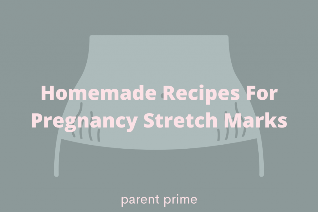 how to get rid of pregnancy stretch marks home remedies